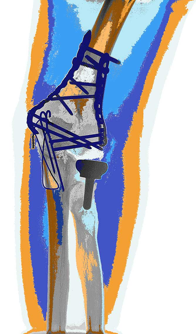 Rotator-cuff-posterized-work-color-I